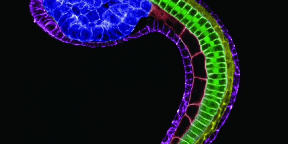 Shaping the Ciona notochord