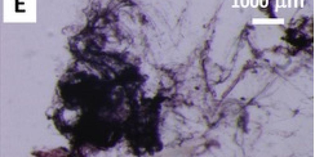Des nanoparticules au macroplancton : d'une pierre deux coups